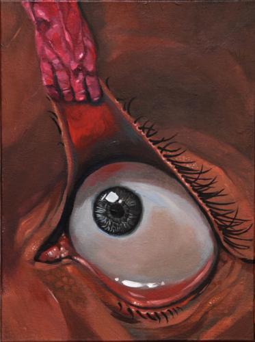 Eyelid yank